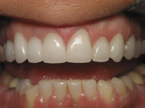 Longer, more natural and younger-looking teeth