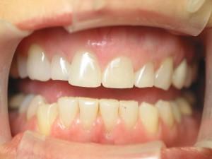 Short, square teeth