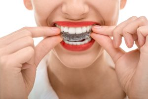 Your dentist in Fort Worth provides Invisalign for a healthy and beautiful smile.