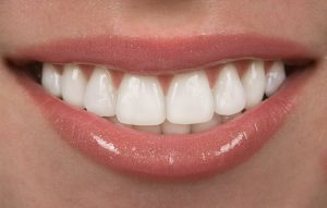 person with a white smile