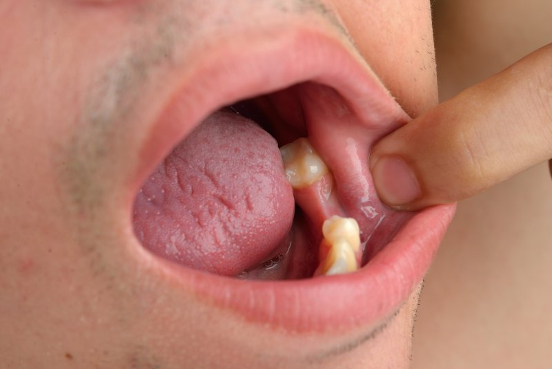 Man in need of dental implants to replace missing teeth